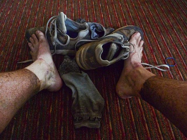 A Mini-Guide to Post-Run Foot Care